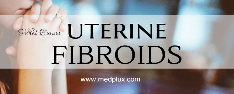 Uterine Fibroids Symptoms, Causes and Treatment