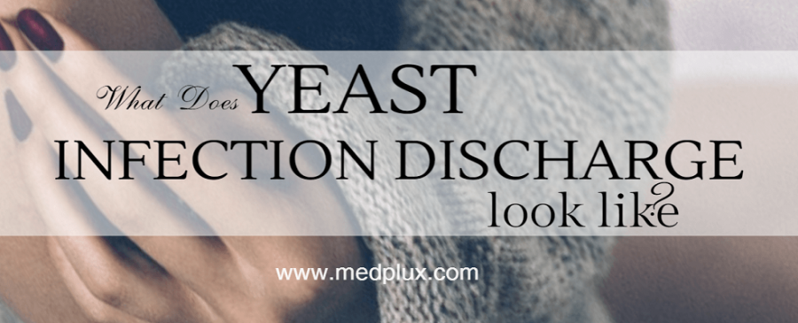 yeast infection discharge