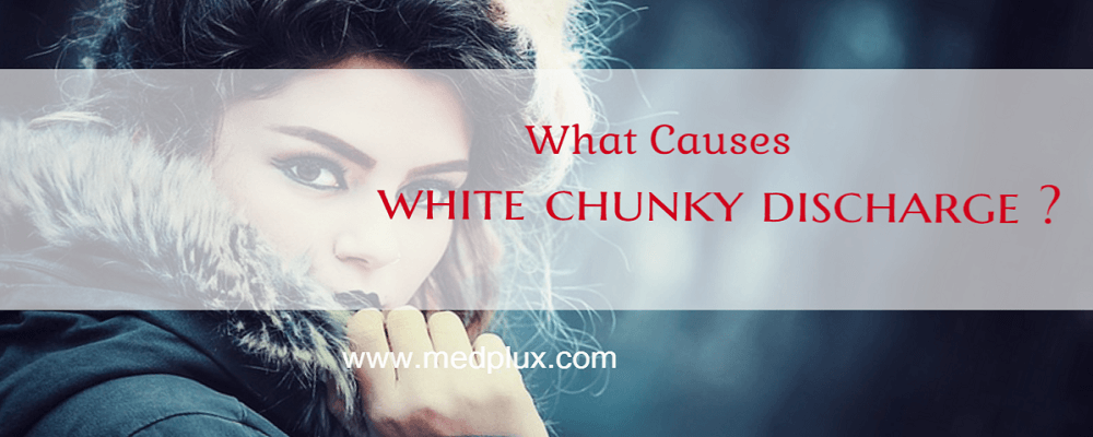 White chunky discharge no odor no itch