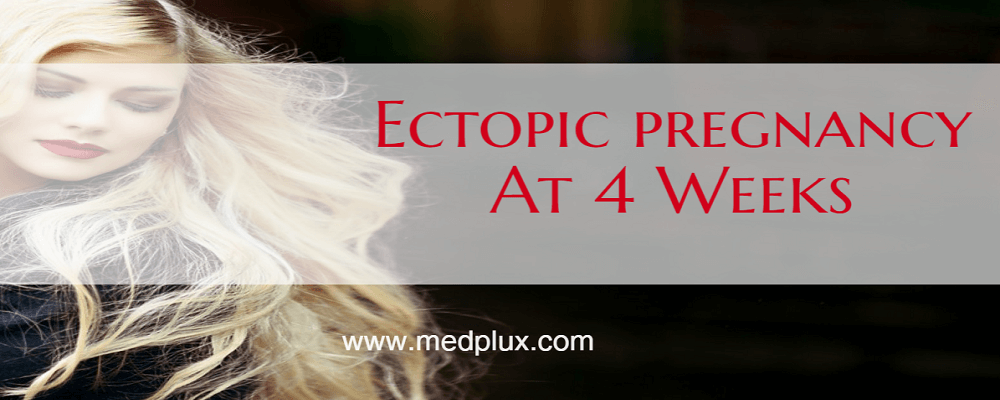 Ectopic Pregnancy at 4 weeks Signs, Symptoms, Causes, Treatment